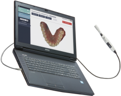 biotech-dental-scanner-condor